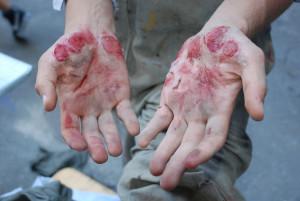 Realistički prikaz povreda, stanja i oboljenja